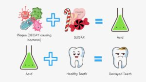 tooth decay causing germs eat sugar, then produce acid and the acid dissolves tooth enamel