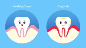 Two little teeth, one which is happy and healthy, the other which is sad because the gums around it have gingivitis