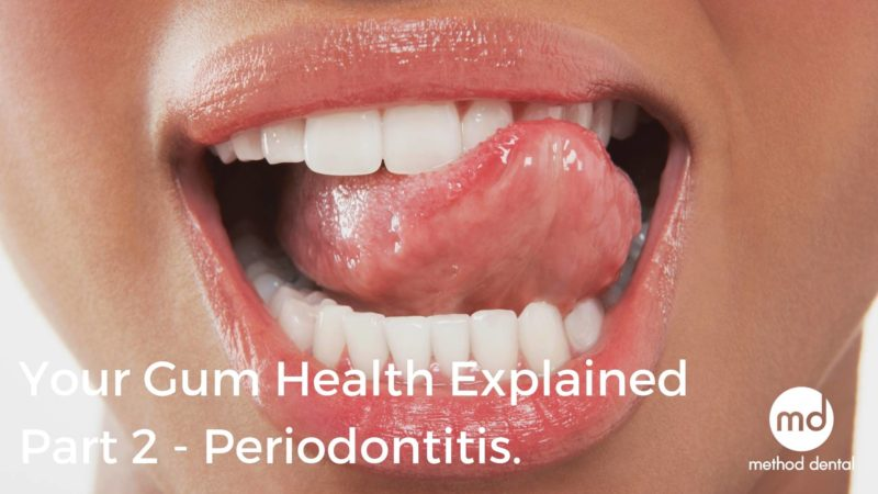 Periodontitis, Gum Disease and How to Treat it
