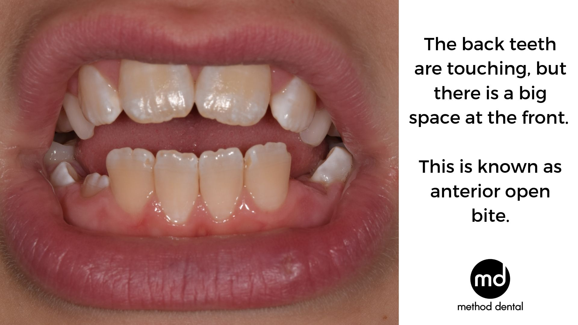 A ten year old child with anterior open bite where the back teeth are touching but the front teeth do not and there is a large gap