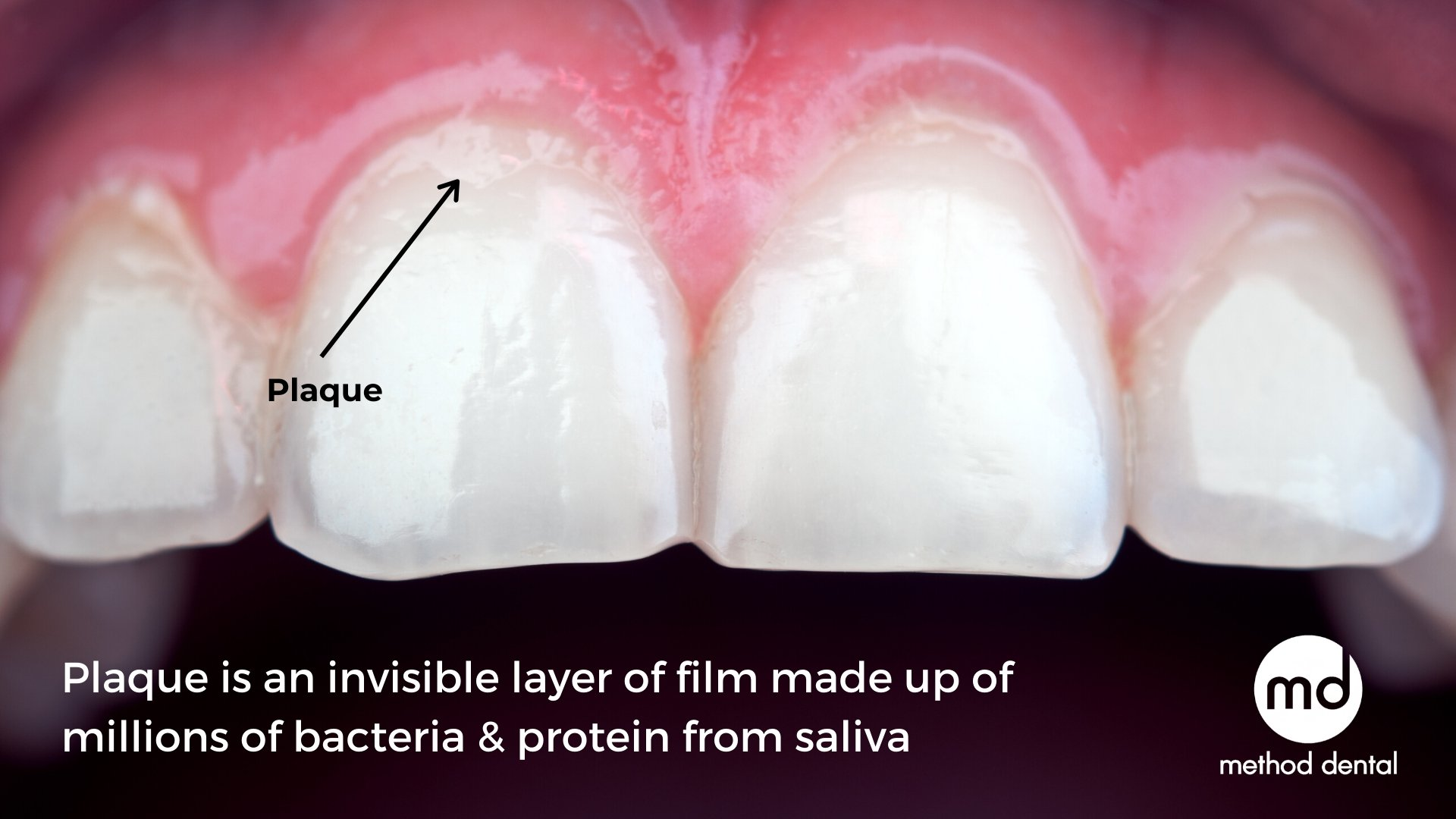 Dental plaque forms near the gumline of a tooth